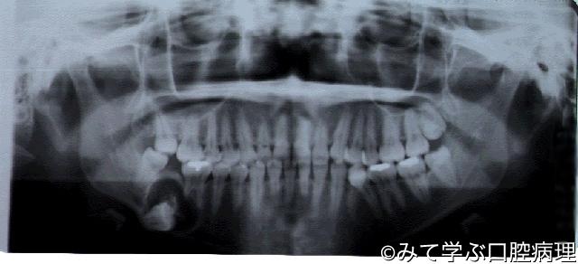 第6章 歯原性腫瘍 石灰化上皮性...