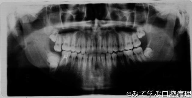 第6章 歯原性腫瘍 複雑性歯牙腫1/7